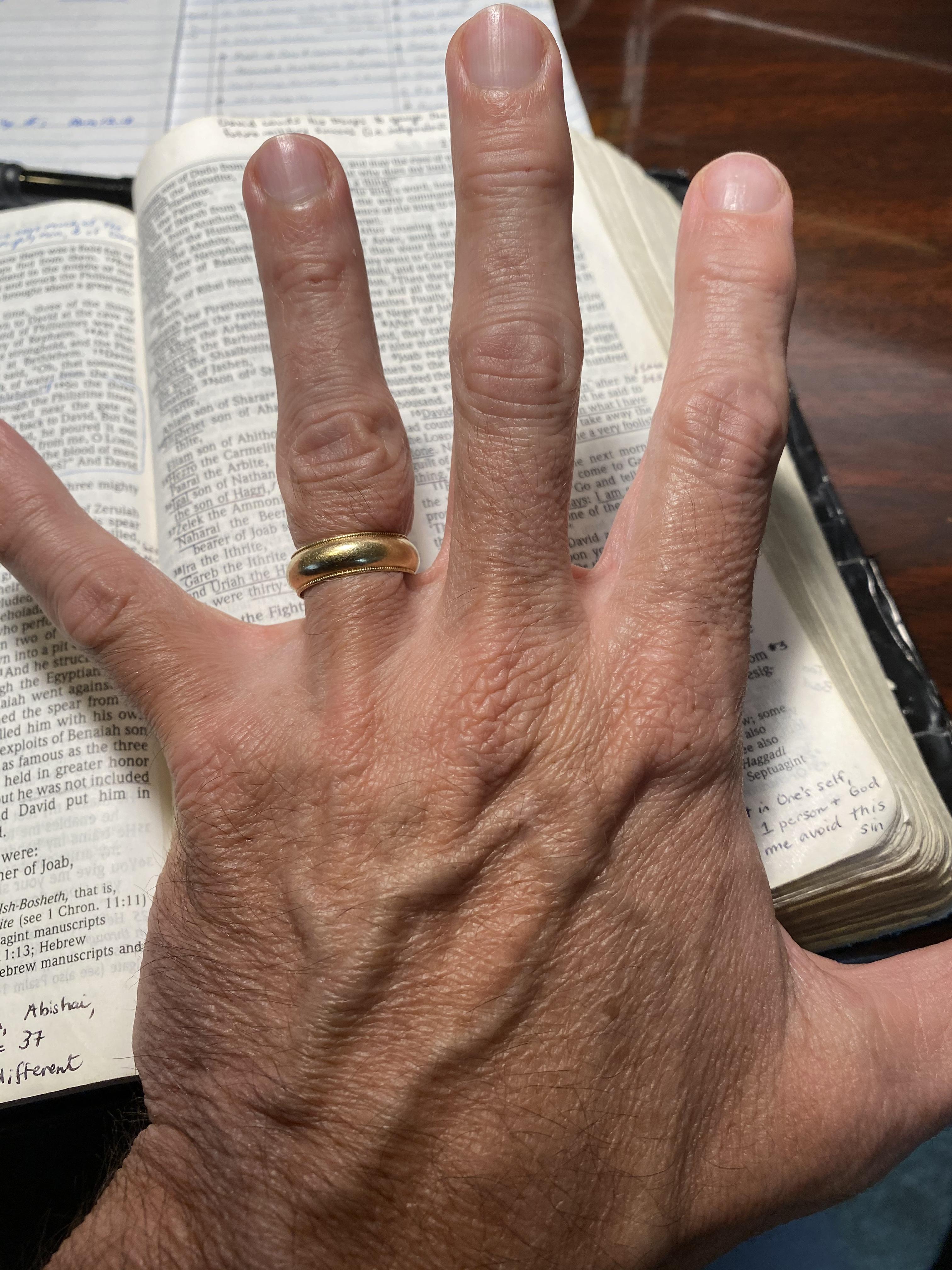 God Broke My Finger, and I'm So Grateful!